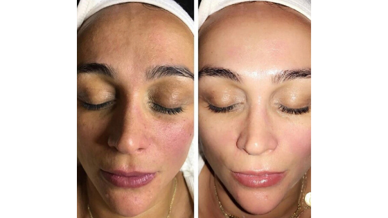 Facial Picture of before and after a cryostar facial, the results are glowing